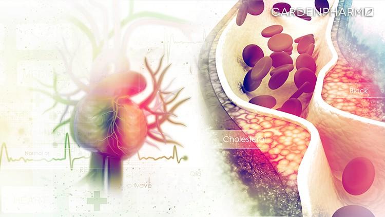 Cholesterol – poznaj jego prawdziwe oblicze